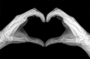 x-ray image of hands shows heart sign